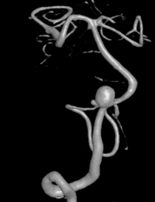 aneurysm image
