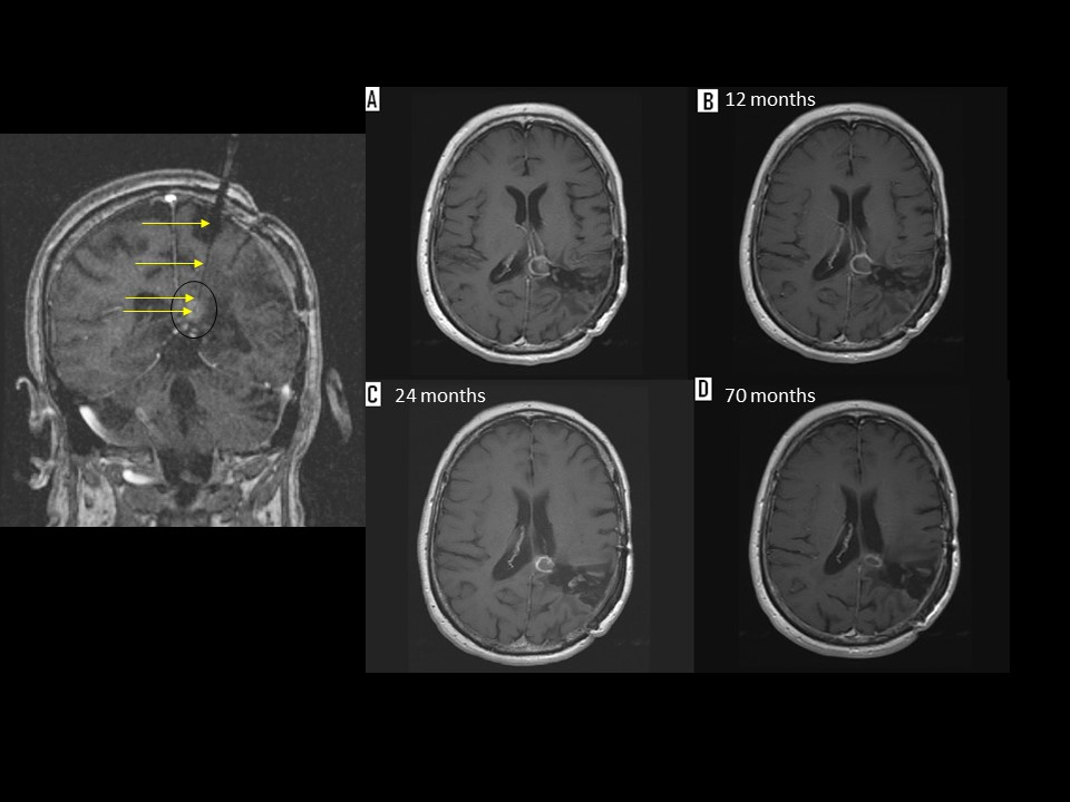 Figure: This is a patient with a recurrent anaplastic ependymoma located below the splenium of the corpus callosum. The patient had undergone multiple craniotomies, fractionated radiation as well as radiosurgery. She underwent placement of a transparietal laser catheter using the Visualase System (Left image). The images on the right represent the follow up images after MRI guided laser therapy.