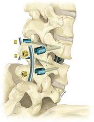 Spine Guidelines Artwork